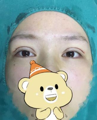 全切双眼皮手术